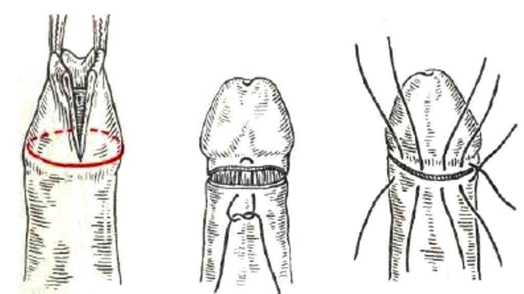 операция обрезания крайней плоти члена