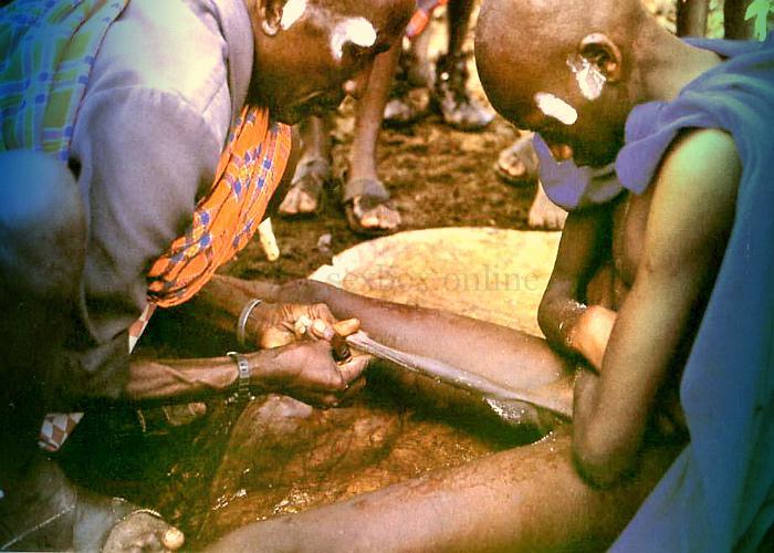 Фото: растягивание пениса у абригенов для большой длины