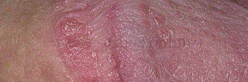 Осложнения применения пищевой соды в домашних условиях для увеличения пениса