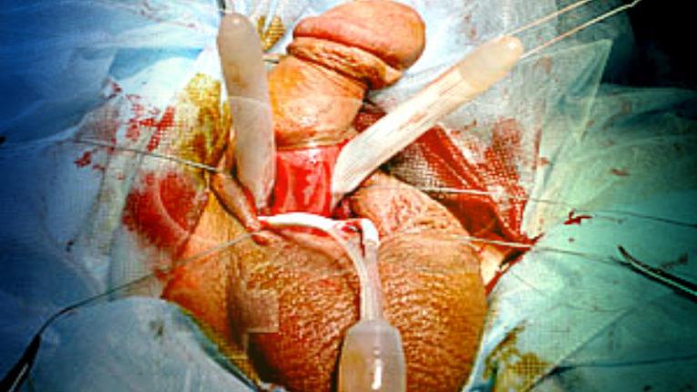 Фото: операции по увеличению длины и толщины члена. виды, цены