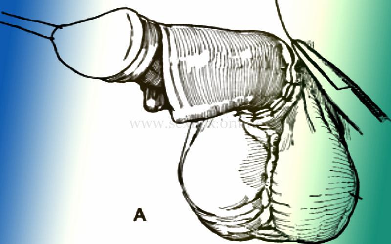 Фото: увеличение члена операцией микрохирургической мышечной трансплантацией
